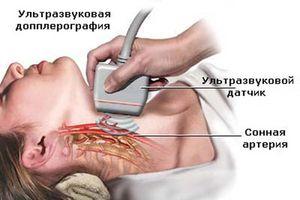 Диагностика сосудов головного мозга и шеи