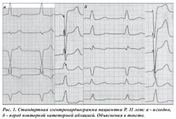 Заключение кардиолога синусовый ритм